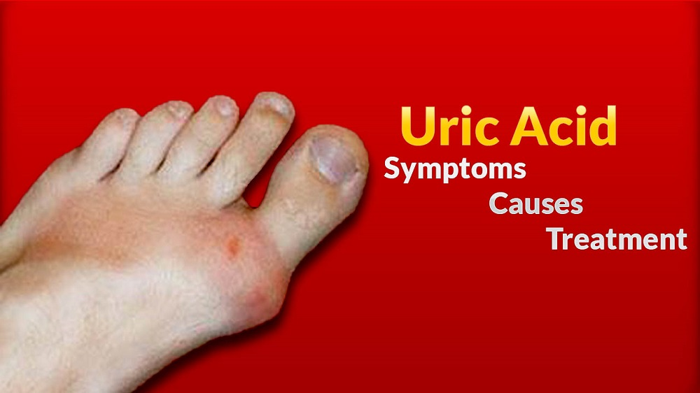 Facts about the Uric Acidity of Human Body