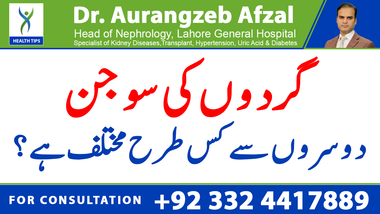 Swelling in body by Kidney disease/Kidney failure is different from others   Urdu/Hindi