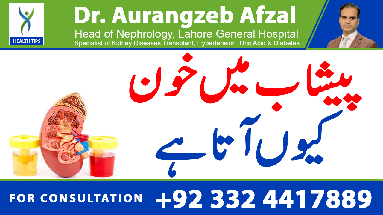 BLOOD in urine || Dangerous causes and investigations || Urdu/Hindi