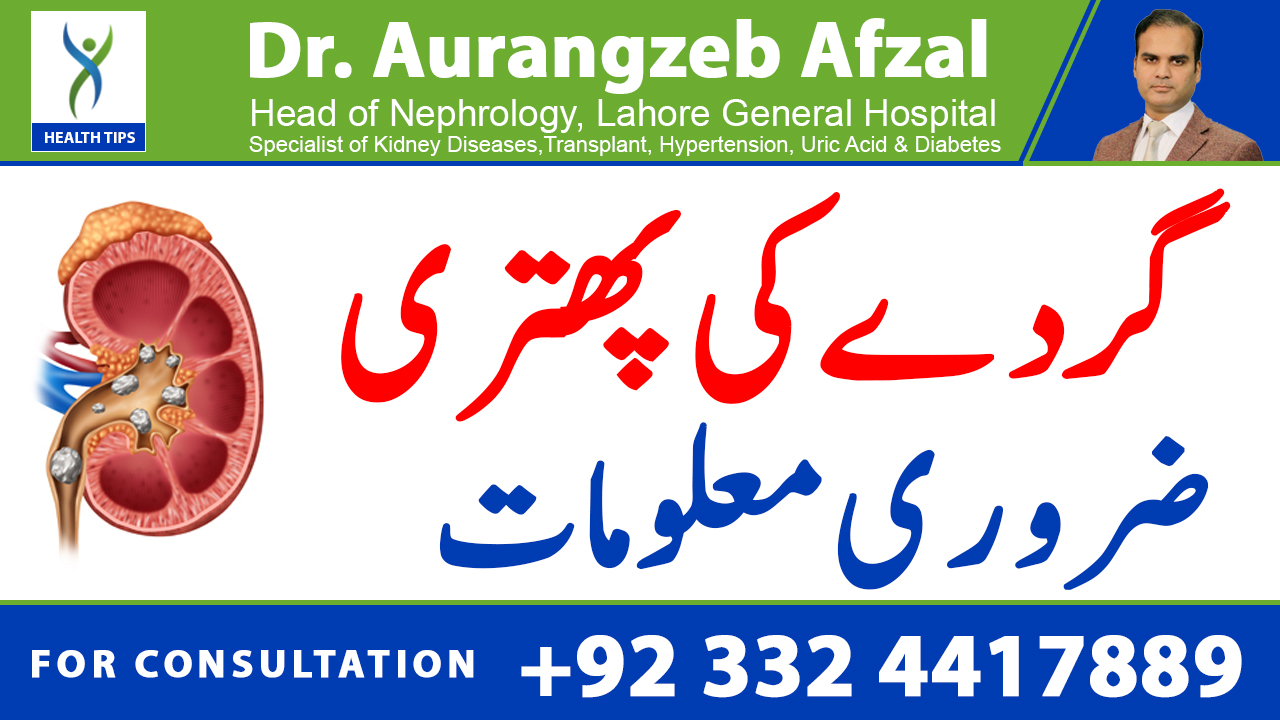 KIDNEY stones, all you need to know! (URDU/HINDI)