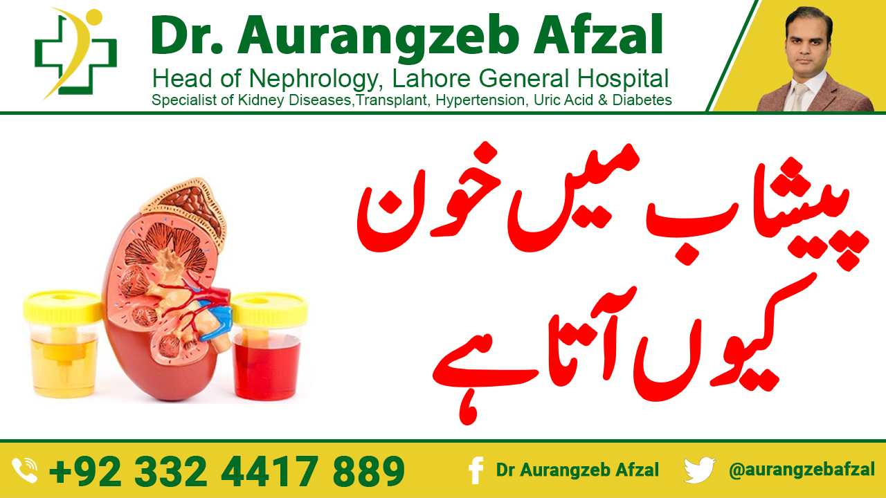 BLOOD in urine [Dangerous causes and investigations] in Urdu/Hindi