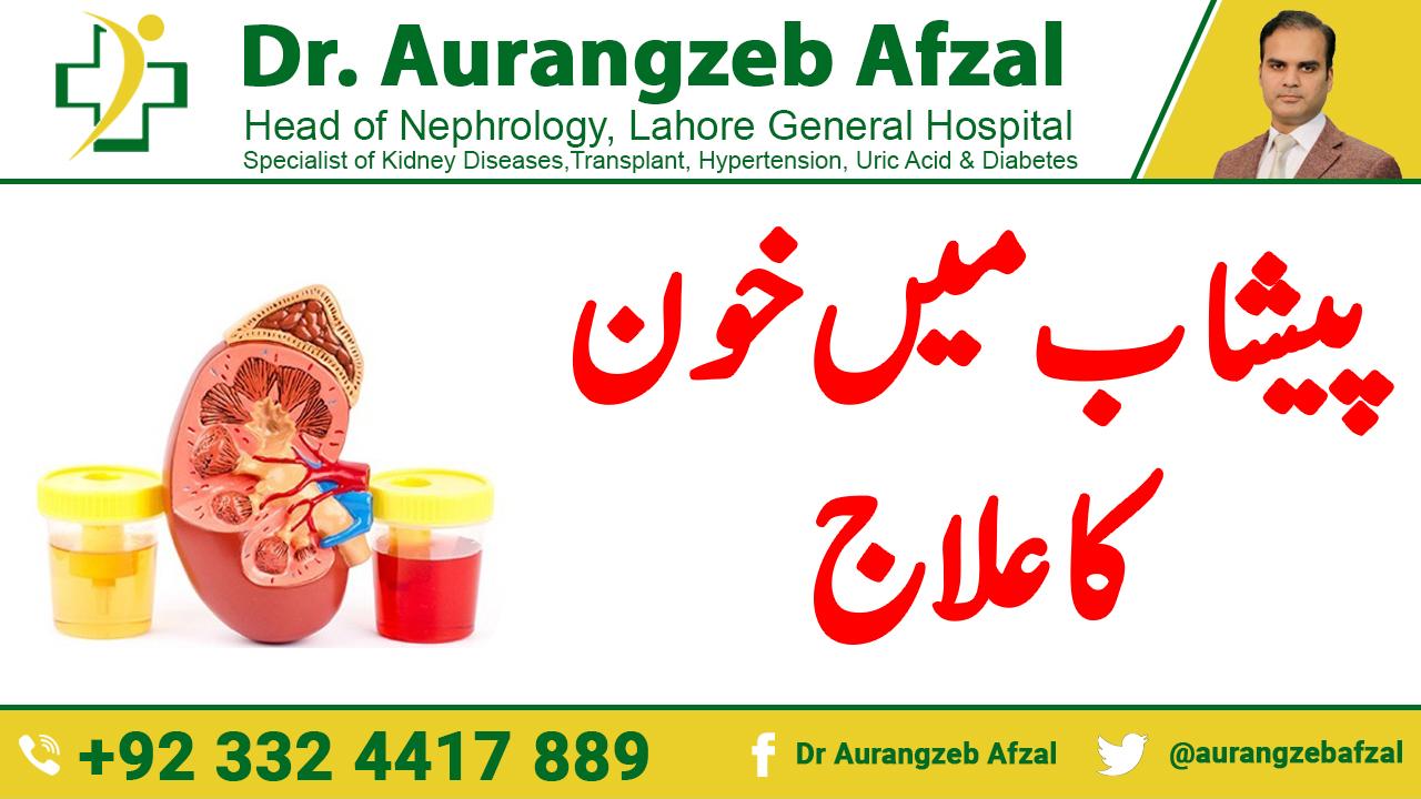 Blood in Urine (Hematuria) Causes, Symptoms and Treatments in Urdu/Hindi