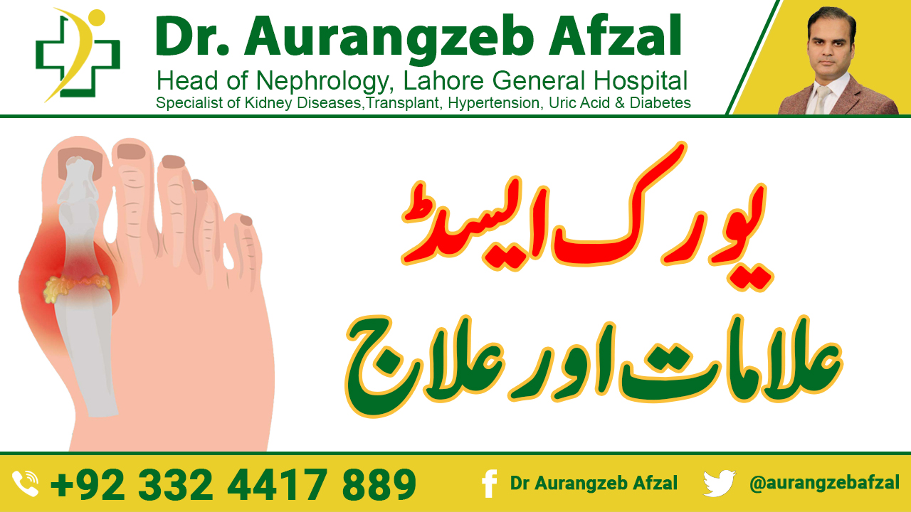Sign, Symptoms and Treatment of Uric Acid in Urdu by Dr Aurangzeb Afzal