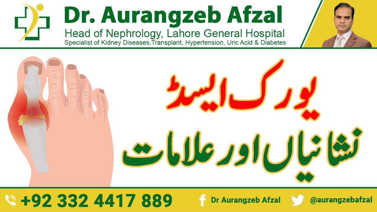 What are the Sign & symptom of Uric Acid in Urdu/Hindi