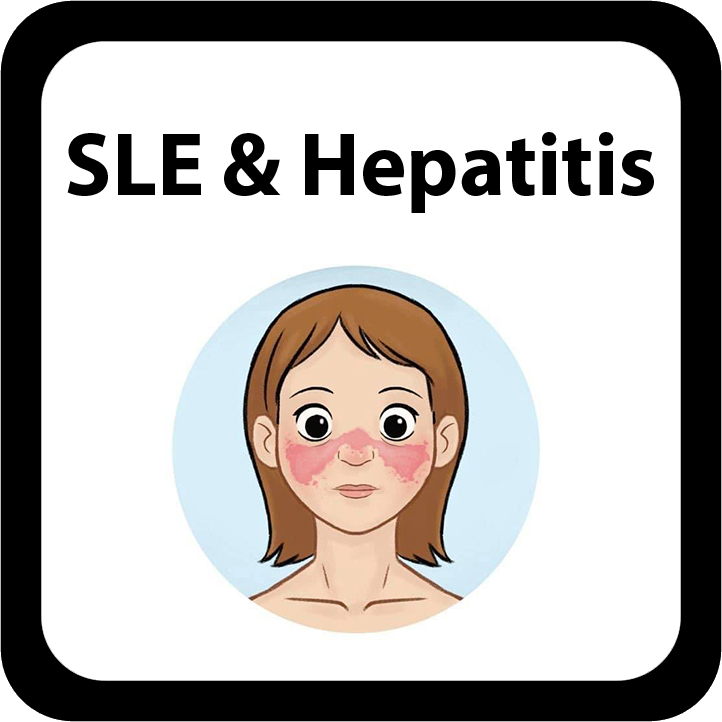 SLE & Hepatitis